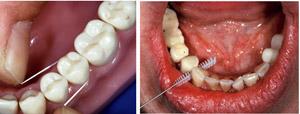 Oralna higijena 1