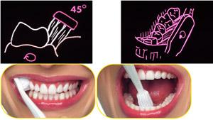 Oralna higijena 2