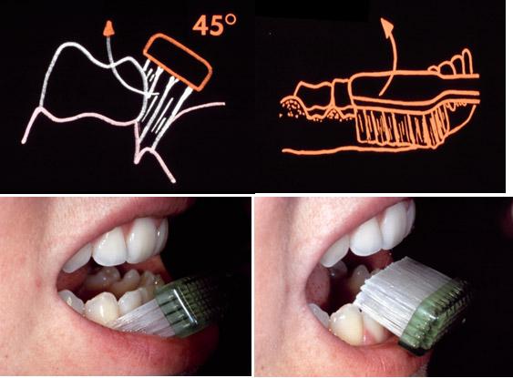 Oralna higijena 3