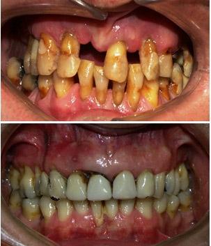 Parodontitis 3