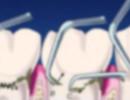 Radni tečaj: Inicijalna-nekirurška parodontna terapija