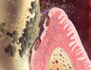 Parodontitis i sistemske bolesti 2